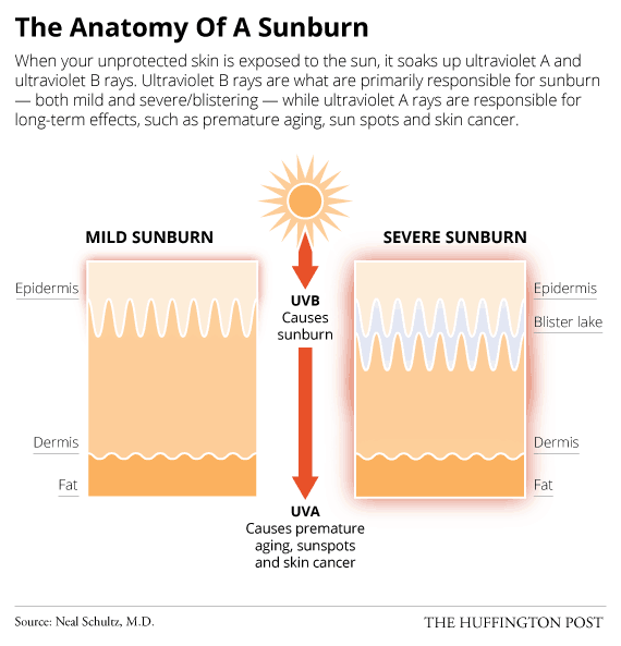 What happens to your skin when you get a sunburn